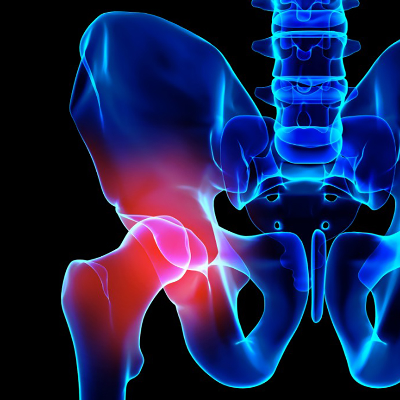 Hip Pain Management - Conditions We Treat