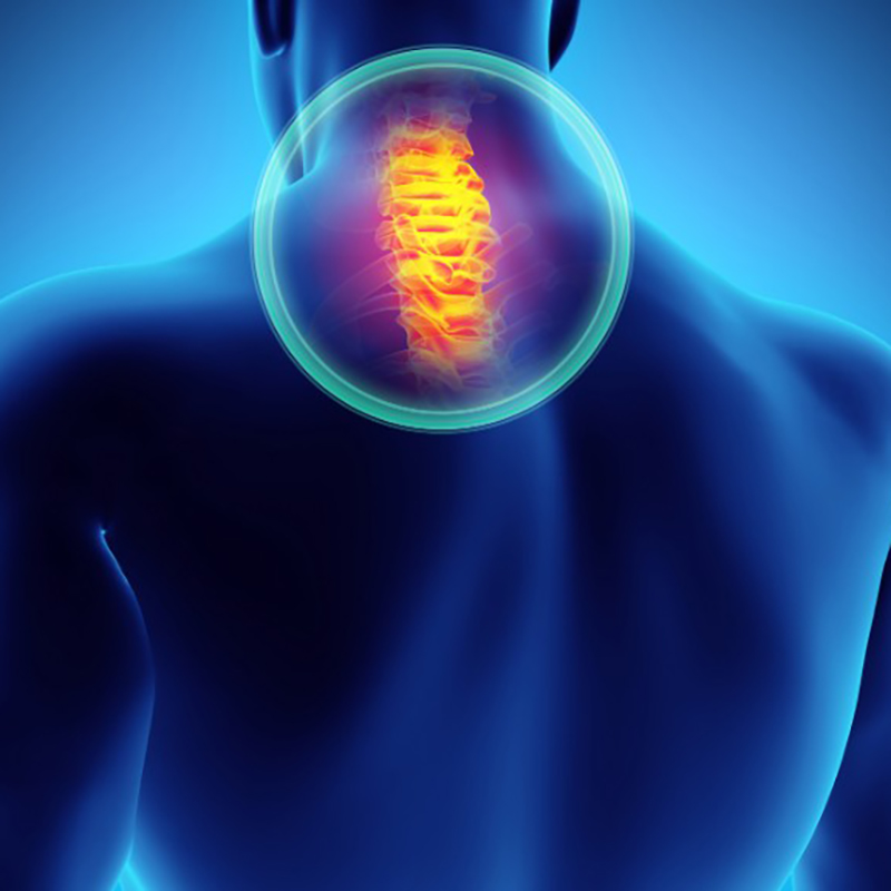 Neck Pain Management - Conditions We Treat