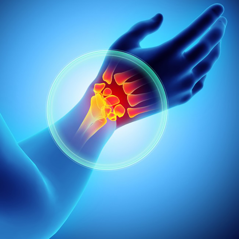 Wrist Pain Relief - Conditions We Treat